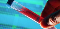 دانلود تحقیق بیماری های مقاربتی